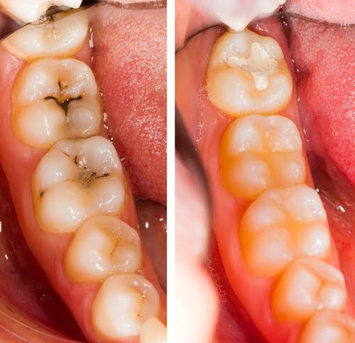 Best Sarnia Dentist for Oral Health