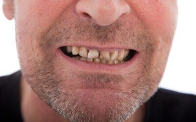How Dental Plaque Increases Cancer Risk
