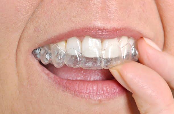 Advantages to Invisalign ® -  Corunna Dentist